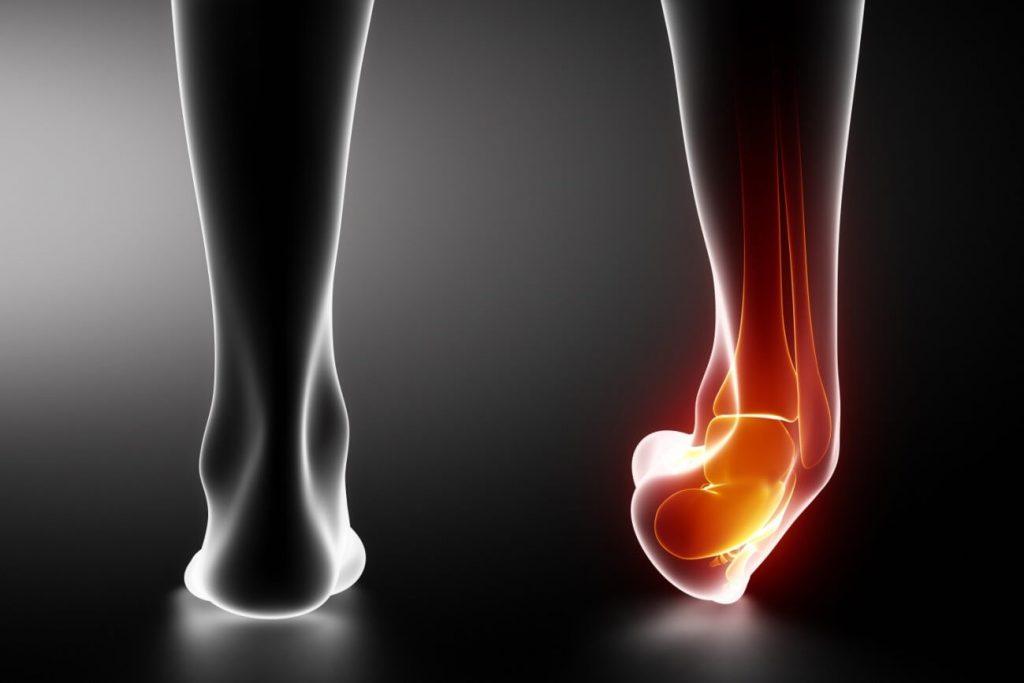 lesión tratamiento frío calor caminata nórdica