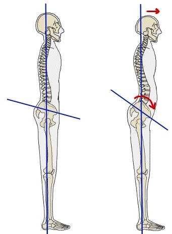 Beneficios de la espalda con la marcha nórdica
